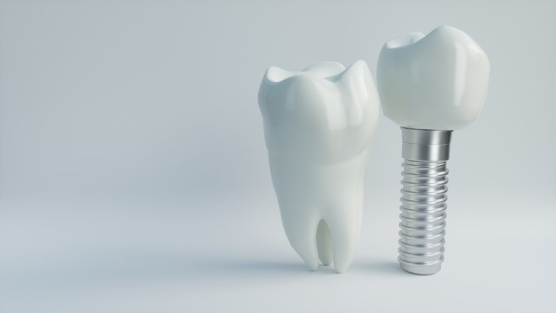 a tooth and dental implant